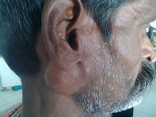 Salivary gland tumour Medical condition