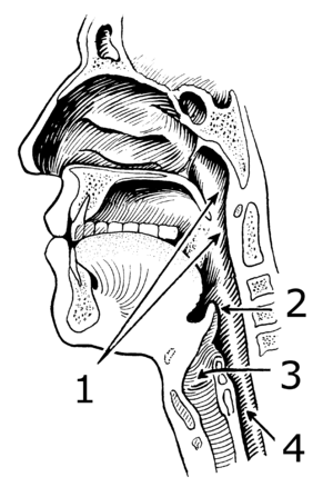 Laryngopharyngeal reflux - Sagittal illustration of the anterior portion of the human head and neck. In LPR, the pharynx (1) and larynx (3) are exposed to gastric contents that flow upward through the esophagus (4).