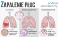 Pneumonia classification PL.png