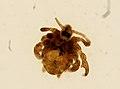 Pthirus pubis (YPM IZ 093614).jpeg
