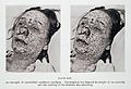 Pustular eruption of smallpox on face Wellcome L0032959.jpg