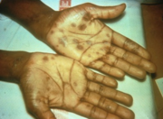 Secondary syphilis can cause rash-like lesions on the palms of the hands.