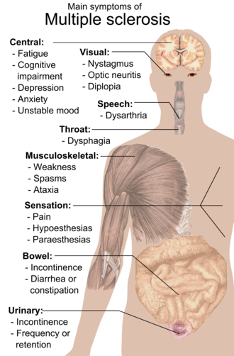 Multiple sclerosis signs and symptoms - Main symptoms of multiple sclerosis.