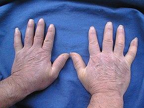 cosè lo scleroderma derma