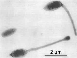 Hyphomicrobium - Image: Three representative cell types of a random culture of Hyphomicrobium sp., strain B 522