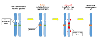 Nondisjunction - Image: Two hit malignant transformation with chromosome loss
