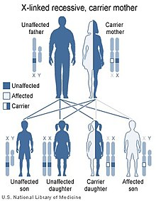 Lesch–Nyhan syndrome - Wikipedia, the free encyclopedia
