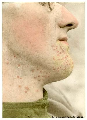 Anthropogenic hazard - Dermatitis (burn) of chin from vapors of mustard gas