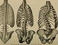A treatise on orthopedic surgery (1903) (14761624591).jpg
