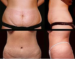 definition of abdominoplasty