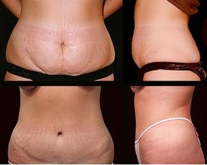 Abdominoplasty is a cosmetic operatio...