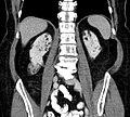 Angiomyolipome TubSklerose cor.jpg