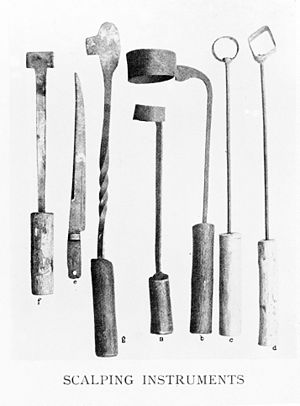 Arabic scalping instruments and anatomical drawing. Wellcome M0002701.jpg