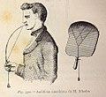 Audífono americano de M. Rhodes (1882).jpg