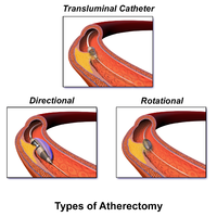 Blausen 0064 Atherectomy.png
