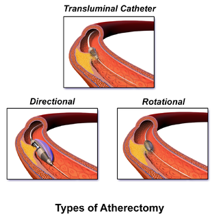 Atherectomy endovascular procedure in which atheromatous plaque is excised by a cutting or rotating catheter