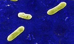 Bordetella bronchiseptica.jpg