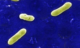 Kennel cough - A scanning electron micrograph (SEM) depicting a number of Gram-negative Bordetella bronchiseptica bacteria.