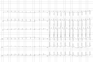 ECG from a man with bradycardia-tachycardia sy...