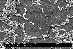 SEM micrograph of C. fetus
