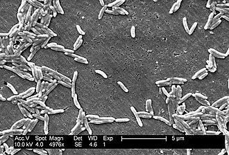 "Campylobacter fetus - SEM image of C. fetus showing the characteristic ""S-shaped"" morphology."