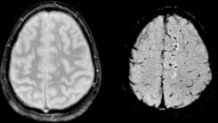 Contusión cerebral después de tbi