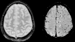Susceptibility weighted image (SWI) of diffuse axonal injury in trauma at 1.5 teslas (right)