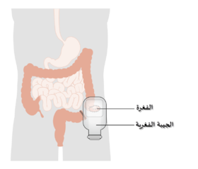 Diagram showing a colostomy with a bag CRUK 061-ar.png