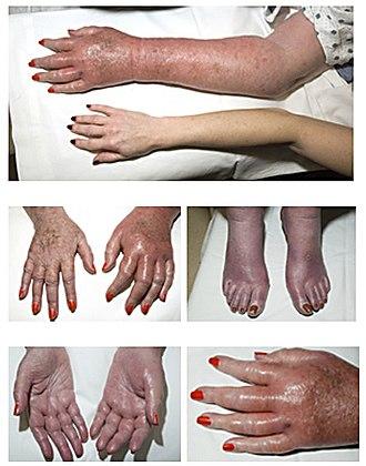 Effects of global warming on human health - Image: Erythromelalgia