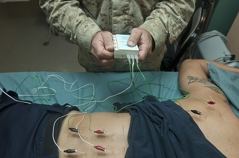 File:Flickr - Official U.S. Navy Imagery - Cmdr. Yevsey Goldberg conducts an acupuncture procedure. (1).jpg