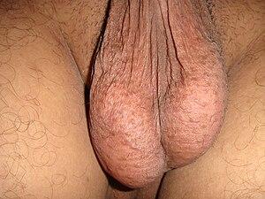 Hanging testicles.JPG