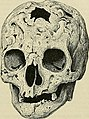 Lehrbuch der speziellen pathologischen Anatomie für Studierende und Ärzte (1907) (14581825399).jpg