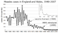 Measles incidence England&Wales 1940-2007.png