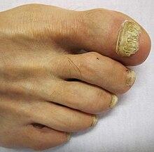 toenail fungus wiki
