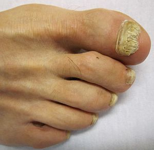 A Toenail Affected By Onychomycosis