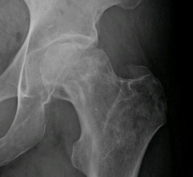 File:Osteonecrosis femur 1.jpg