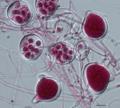 Phytophthora agathidicida sporangia and zoospores.tif
