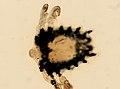 Pthirus pubis (YPM IZ 093629).jpeg