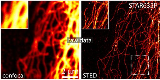 STED microscopy image of Vimentin with 25nm resolution