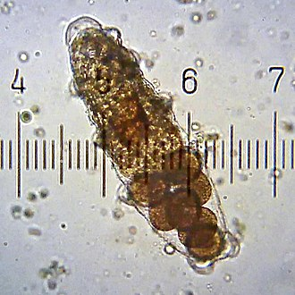 Tardigrade - Shed cuticle of female tardigrade, containing eggs.