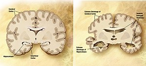 Curiosity - Left: normal brain. Right: AD afflicted brain. Severe degeneration of areas implicated in curiosity