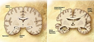 Clinical neurochemistry - Comparison of a normal aged brain (left) and an Alzheimer's patient's brain (right).