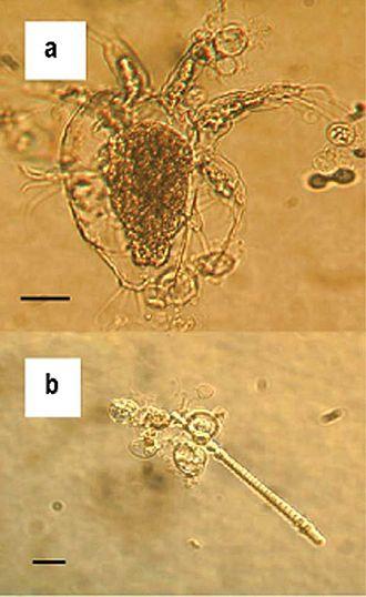 Chytridiomycosis - Zoosporangia of Batrachochytrium dendrobatidis strain 98-1810/3 visible as transparent spherical bodies growing in lake water on (a) freshwater arthropod and (b) algae.