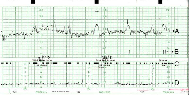 Flat Rate Chart Ducati Mts
