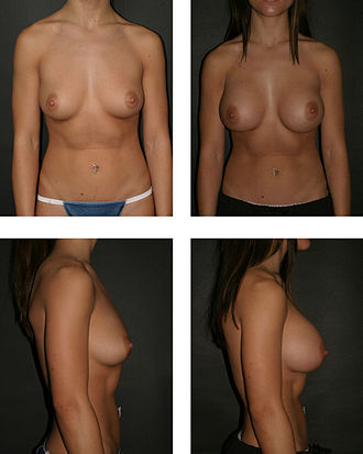 Breast augmentation - The pre-operative aspects (left), and the post-operative aspects (right) of a bilateral, sub-muscular emplacement of 350 cc saline implants through an infra-mammary fold (IMF) incision