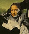 Emmanuel Fournier Greffe de visage Duchenne de Vinci 2009.jpg
