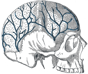 Diploic veins - Veins of the diploë as displayed by the removal of the outer table of the skull.