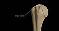 Greater-Tubercle-of-Right-Humerus.jpg