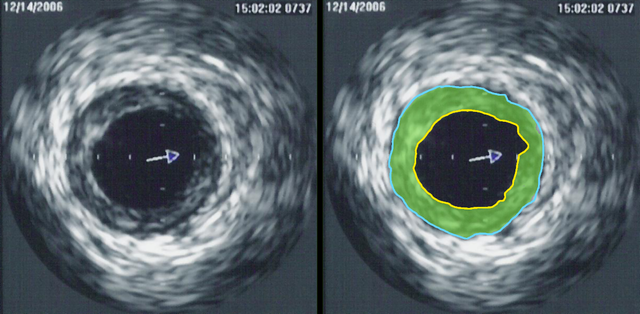 IVUS of CAD