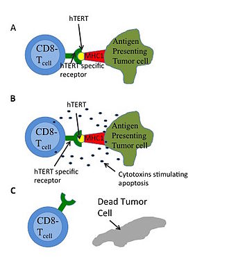 Telomerase - Figure 4:A) Tumor cells expressing hTERT will actively degrade some of the protein and process for presenting. The major histocompatibility complex 1(MHC1), can then present the hTERT epitote. CD8- T cells that have antibodies against hTERT will then bind to the presented epitote. B) As a result of the antigenic binding, the T cells will release cytotoxins, which can be absorbed by the affected cell. C) These cytotoxins induce multiple proteases and results in apoptosis (or cell death).